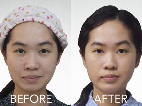 Tighten Loose Skin with Skincare Solutions' New Kinetic Facelift